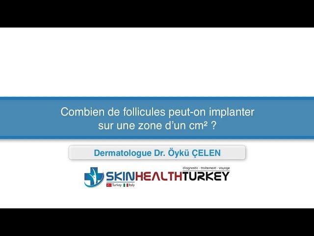 Greffe de cheveux Turquie - Combien de follicules peut-on implanter sur une zone d'un cm²?