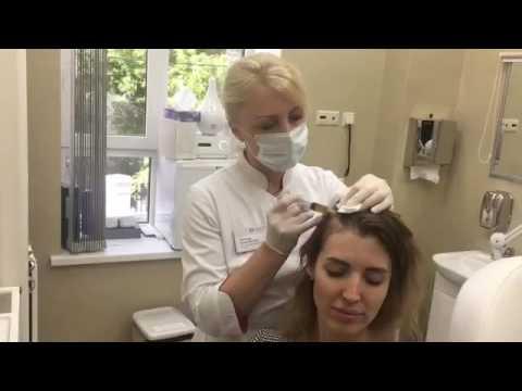 Мезотерапия волос и головы Отзывы покупателей
