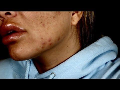 early pregnancy acne
