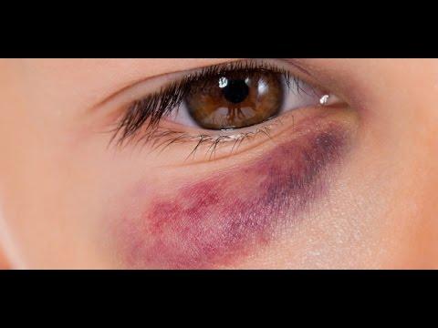 como curar ojo hinchado por golpe