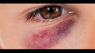 Reducir hematomas Cómo de ojos debajo los los