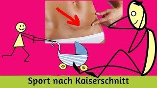 Sport nach Kaiserschnitt