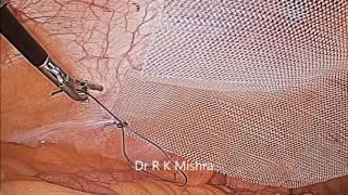 Laparoscopic Repair of Para Umbilical Hernia by Dr R K Mishra