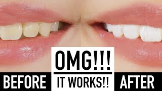Whiten Teeth Instantly With MAKEUP?! ♥ Wengie(, 2016-05-26T16:00:02.000Z)