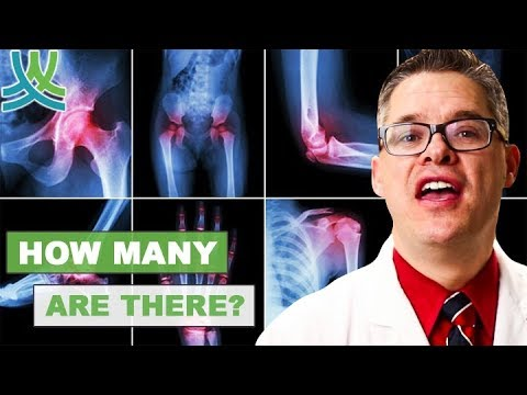 How Many Types Of Arthritis Are There?