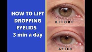 How to lift dropping eyelids 3 min a day | Yoga for face | Elena Amani