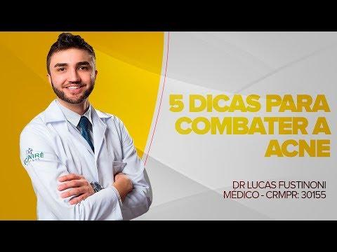 5 Dicas Para Combater a Acne | Dr Lucas Fustinoni - Médico - CRMPR: 30155
