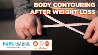 Body Contouring After Ive Weight Loss