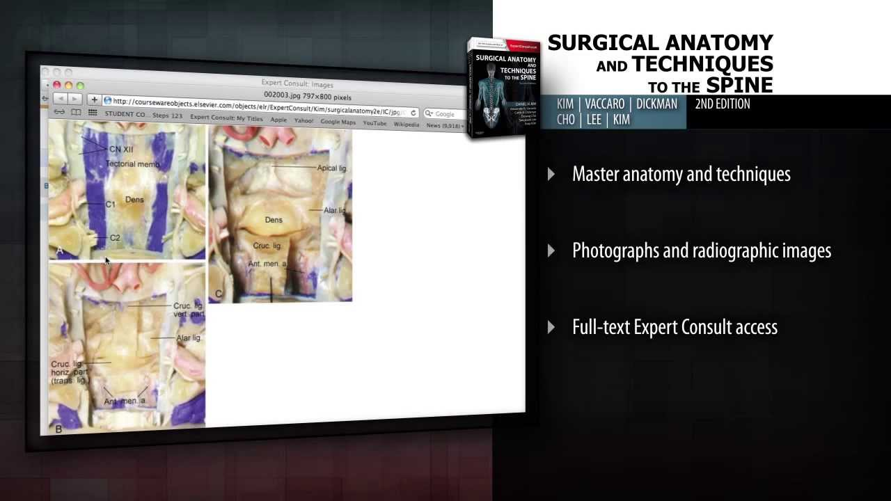 Surgical Anatomy And Techniques To The Spine 2nd Edition Youtube