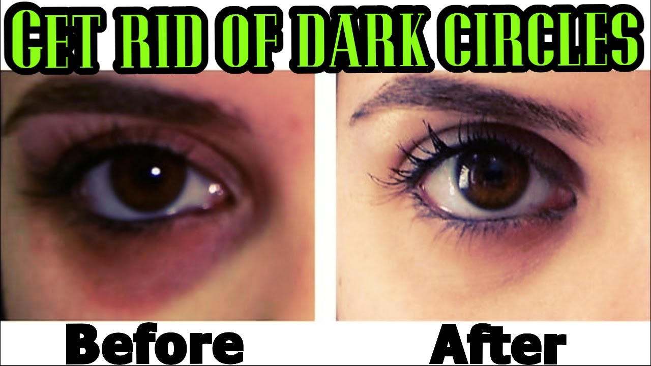QUICK WAYS to Get Rid of DARK CIRCLES PERMANENTLY! - YouTube
