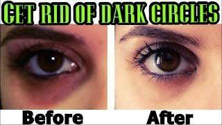 QUICK WAYS to Get Rid of DARK CIRCLES PERMANENTLY!