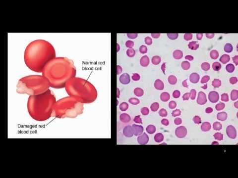 hemolytic anemia - youtube, Skeleton
