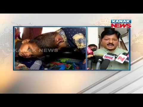 Health Minister Pratap Jena On Surgery of Kandhamal Conjoined Twins
