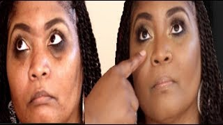 HOW TO Makeup for dark under eye circles & sunken eyes Darbiedaymua