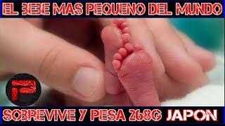 Japon: El bebé más pequeño del mundo sobrevive después de nacer que pesa 268g - Tokio