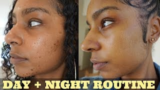 How To: Get Rid of Acne + Hyperpigmentation| My skin care routine day & night