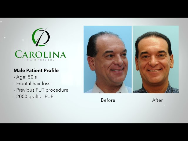 FUE Hair Transplant Procedure - Start to Finish