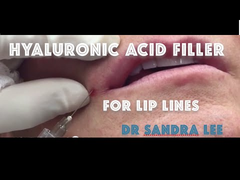 Treating lip lines, and downturned lips with a hyaluronic acid filler