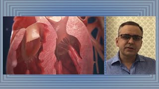 Коронавирус поражает не только легкие но и сердце кардиохирург Алексей Павлов