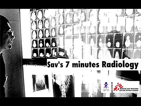 Sav's 7-minute snippets- Pediatric TB- Clues from the Frontal chest radiograph thumbnail