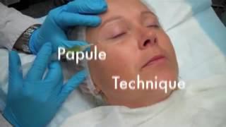 Quy trình trẻ hóa làn da công nghệ PRP