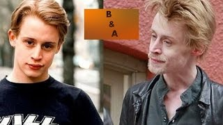 The Faces of Meth Before and After - ALL 150 OF THEM! DON
