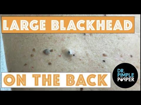 Large Blackheads On The Back