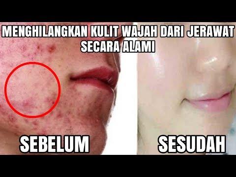 tips-membersihkan-wajah-dari-bekas-jerawat-batu-secara-alami