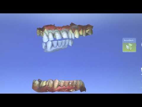 CAD CAM Full Upper Veneers - By Dr Pieter van Rooyen
