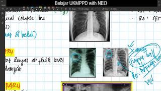 Fimela.com, Pneumonia merupakan infeksi paru-paru ketika kantung udara di paru-paru terisi nanah ata.
