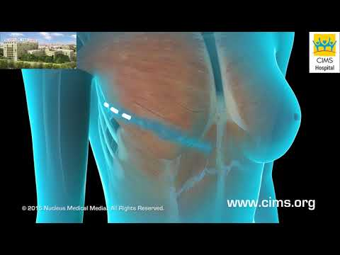 Breast Reconstruction (Hindi) - CIMS Hospital