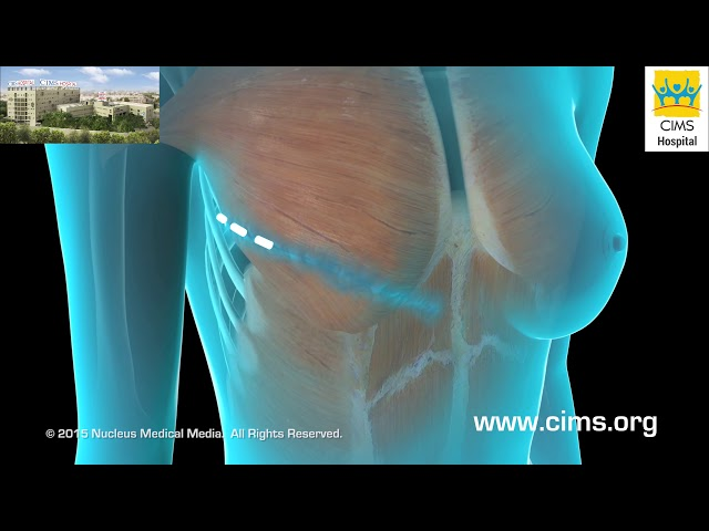 Breast Reconstruction (Hindi) - CIMS Hospital