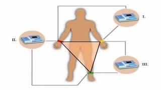 Электрокардиограмма: старый, но верный страж вашего здоровья(, 2016-04-07T06:11:47.000Z)