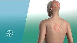 hqdefault - Painkillers Back Pain Diclofenac