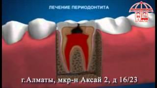 Казахстан Алматы Лечение зуба, Стоматологическая клиника АКСАЙ(, 2013-09-23T14:07:54.000Z)