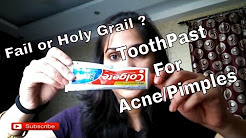 hqdefault - Will Toothpaste Help Get Rid Of Acne Scars