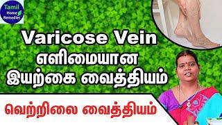 Varicose Veins Treatment in Tamil - Varicose Veins Siddha Treatment - Varicose Veins Home Remedies
