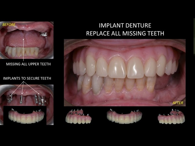 Upper Denture Implant Insertion | All on 6, All on 4 | Milton, Mississauga, Oakville