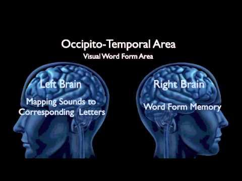 Teaching the Dyslexic Brain