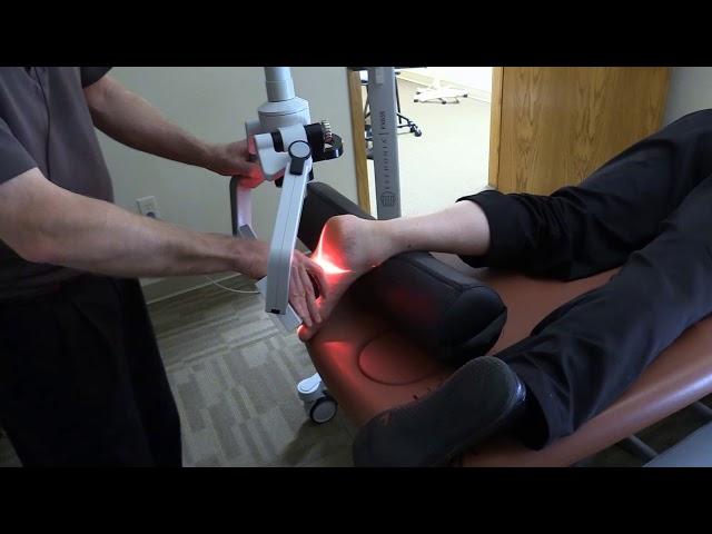 Treatment of Plantar Fasciitis Using Erchonia's FX635 Laser