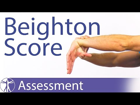 The Beighton Score | Generalized Joint Hypermobility (Laxity)