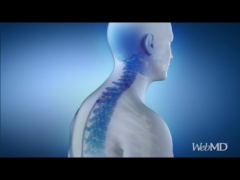 Easy Ways to Improve Your Posture | WebMD