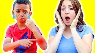 The Boo Boo Story | Nursery Rhymes & Kids Songs