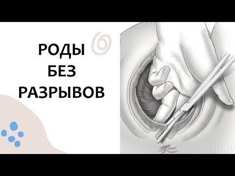Как НЕ ПОРВАТЬСЯ в РОДАХ. Выпуск 92