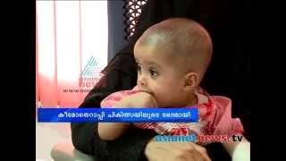 Eight Month Old Baby Relieved From Very Strange Cancer
