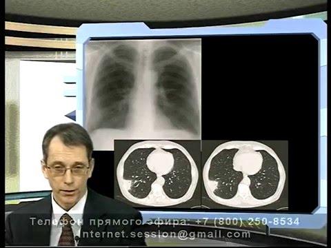 Диагностика внебольничной пневмонии Тюрин