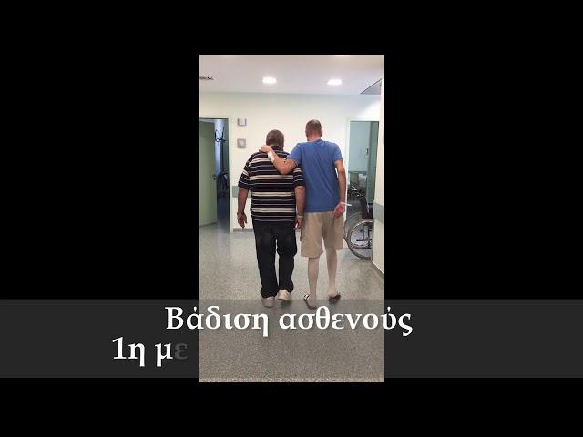 Aμφοτερόπλευρη αρθροπλαστική ισχίου ελάχιστης επεμβατικότητας ALMIS - Δρ. Ν. Ροΐδης