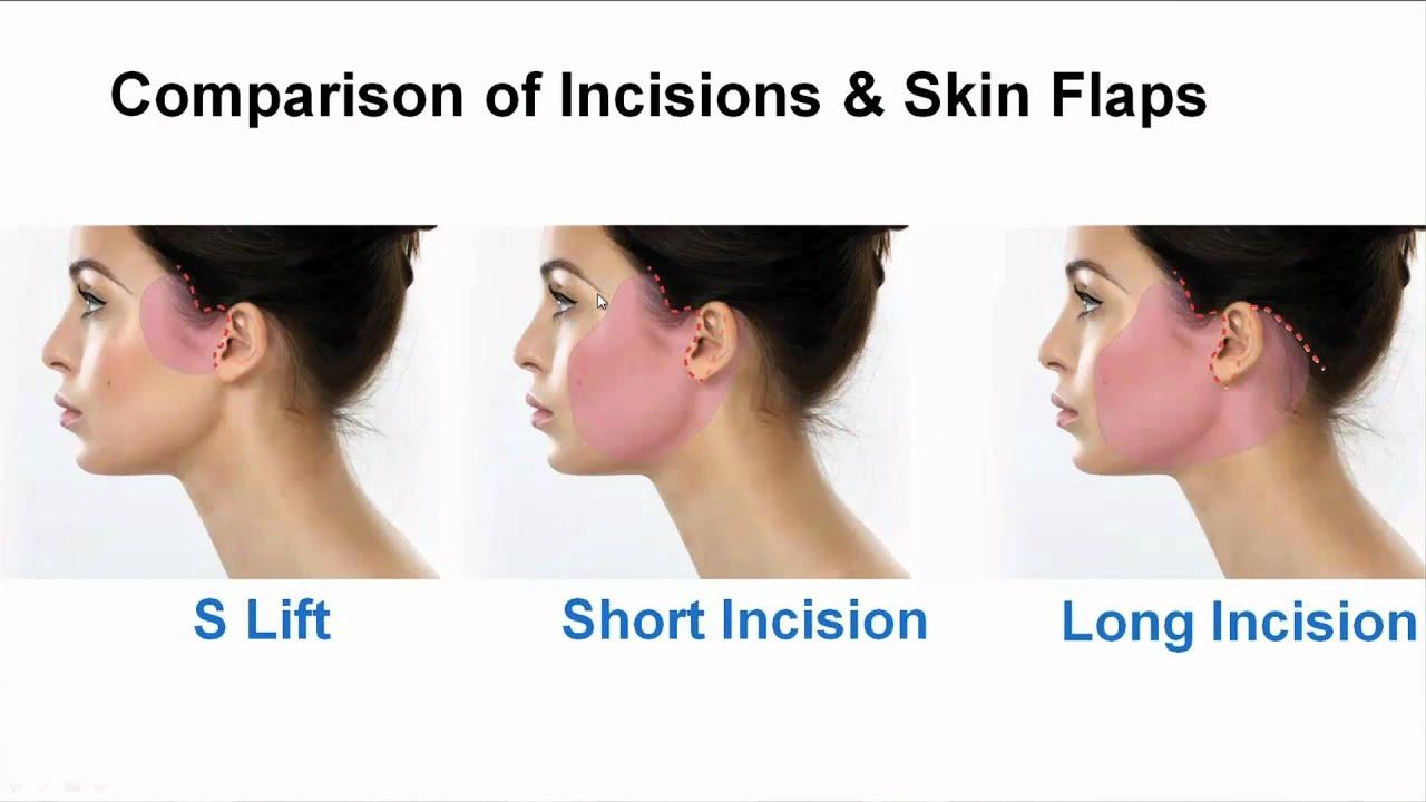 Part 8/13: Comparison of Face & Neck Surgery Incisions ...