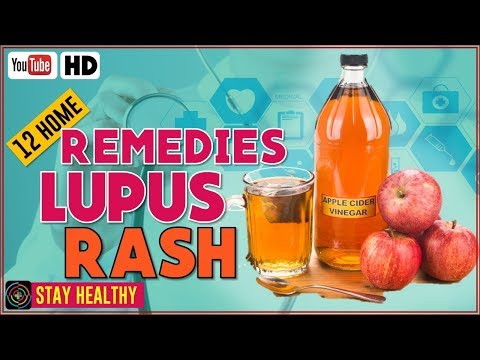 Top 12 home remedies for lupus rash