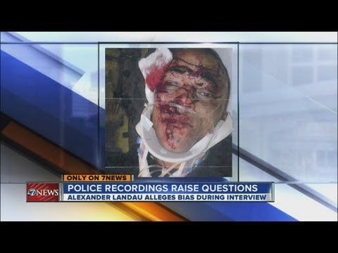 Concerns raises about police interview with alleged brutality victim